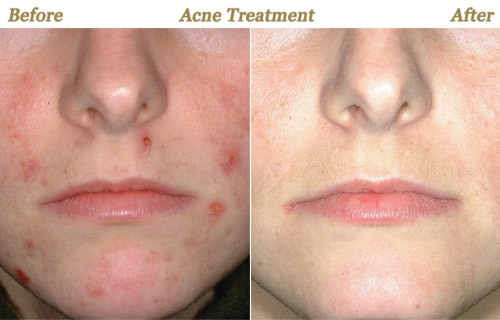 Most Expensive Acne Treatment